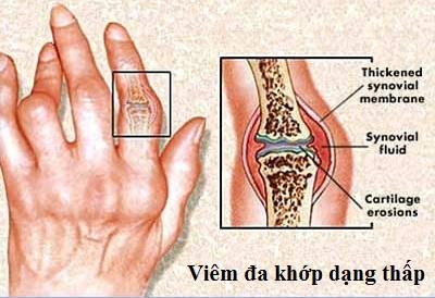cach-dieu-tri-benh-viem-da-khop-dang-thap-1