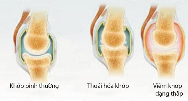 can-phan-biet-viem-khop-dang-thap-va-thoai-hoa-khop-1