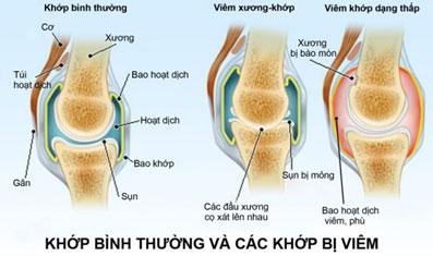 nhan-dien-nguyen-nhan-gay-benh-viem-khop-dang-thap-2