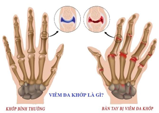 thuoc-dieu-tri-benh-viem-da-khop-dang-thap-1