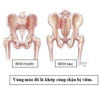 dau-vung-xuong-chau-o-nam-gioi-canh-bao-benh-gi-3