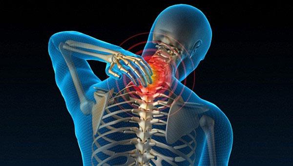 Thoái hóa cột sống cổ dẫn đến đau thần kinh vai gáy