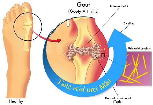 Cách làm giảm acid uric trong máu nhanh chóng