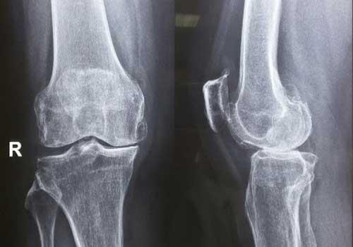 Chụp MRI khớp gối ở bệnh viện Chợ Rẫy