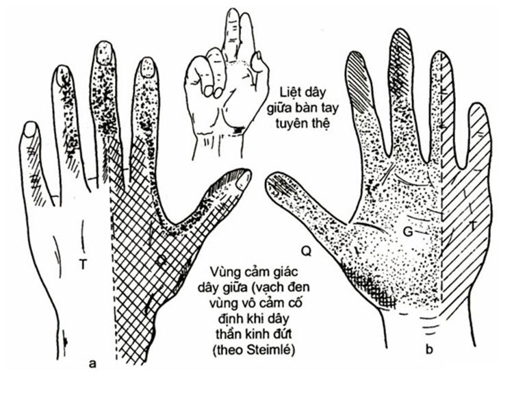 Đau nhức cánh tay trái dấu hiệu của tổn thương dây thần kinh và xương khớp