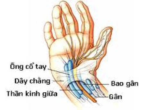 Chèn ép dây thần kinh giữa ống cổ tay gây tê bì chân tay