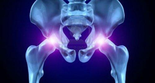 Viêm khớp háng ảnh hưởng đến khả năng sinh lý ở nam giới